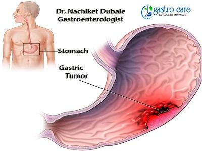 Gastroenterologists in Pune-Dr. Nachiket Dubale
