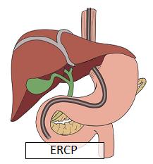 ERCP_Dr Nachiket Dubale_Gastroenterologist in Pune