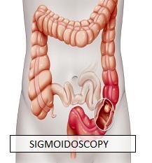 Sigmoidoscopy_Dr Nachiket Dubale_Gastroenterologist in Pune